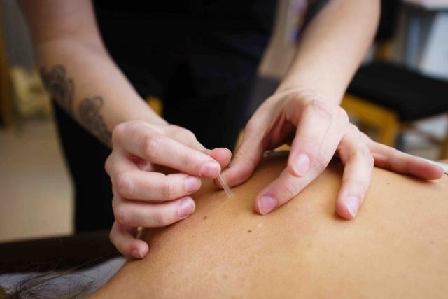 Acupuncture-1024x683-640x480